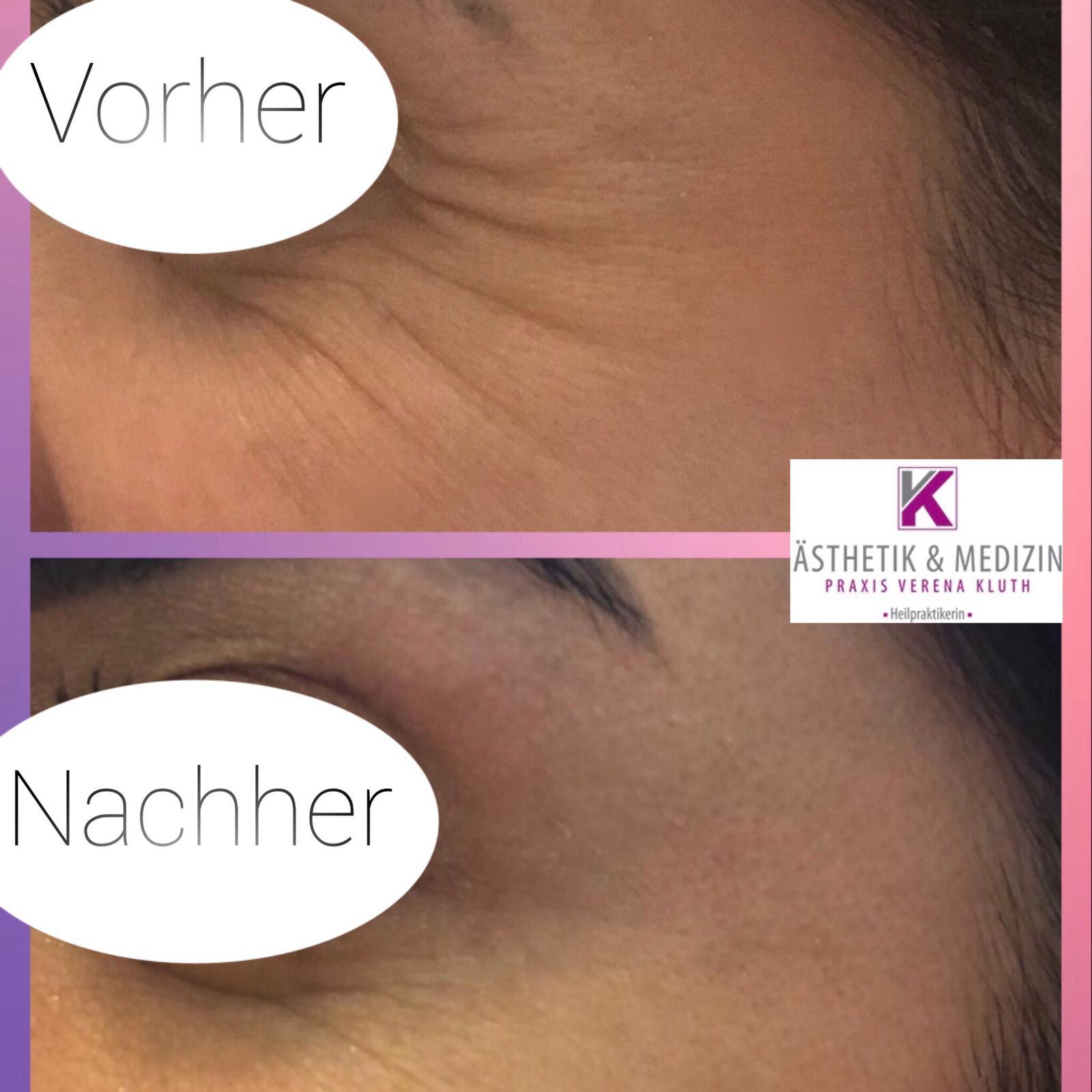 Entspannung der Gesichtsmuskulatur im Stirn- und Augenbereich. Für ein frischeres und entspannteres Aussehen.