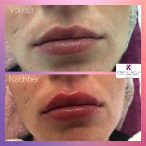 Lippenmodellierung mit Hyaluron von Teoxane für wunderschöne, sinnliche Lippen.